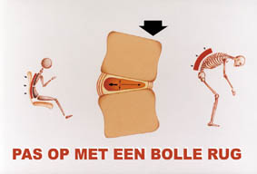 Bolle rug: vervorming discus