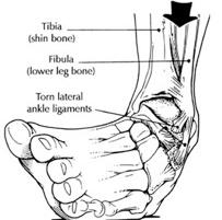 sprained-enkel-6