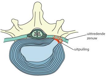 discus met hernia prolaps