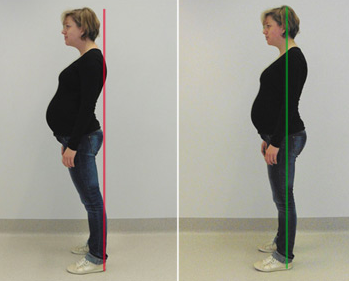 zwangerschap-te-holle-positie - Copyright: https://www.uzleuven.be/rugpijn-tijdens-de-zwangerschap