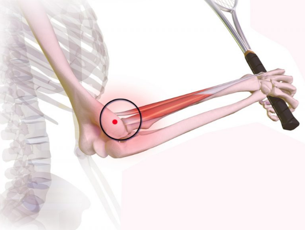 BLESSURE: Wat te doen bij epicondylitis oftenniselleboog?